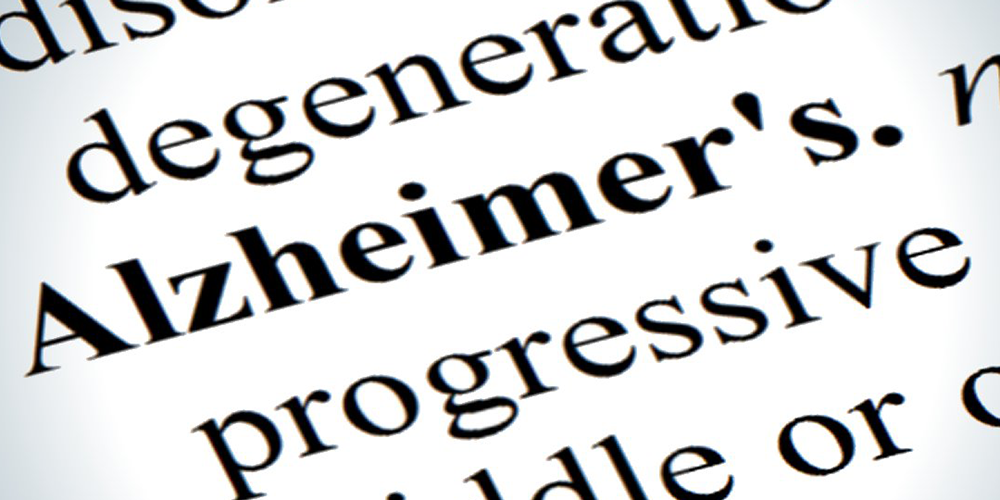 Publicación sobre Alzheimer